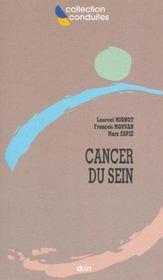 Prise En Charge Du Cancer Du Sein